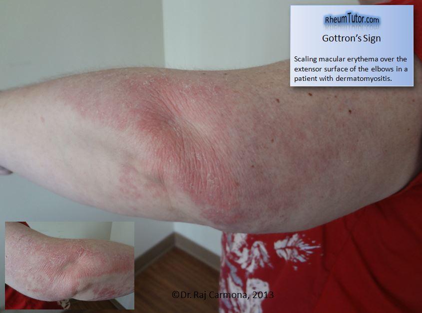 rheumatoid arthritis australian clinical guidelines