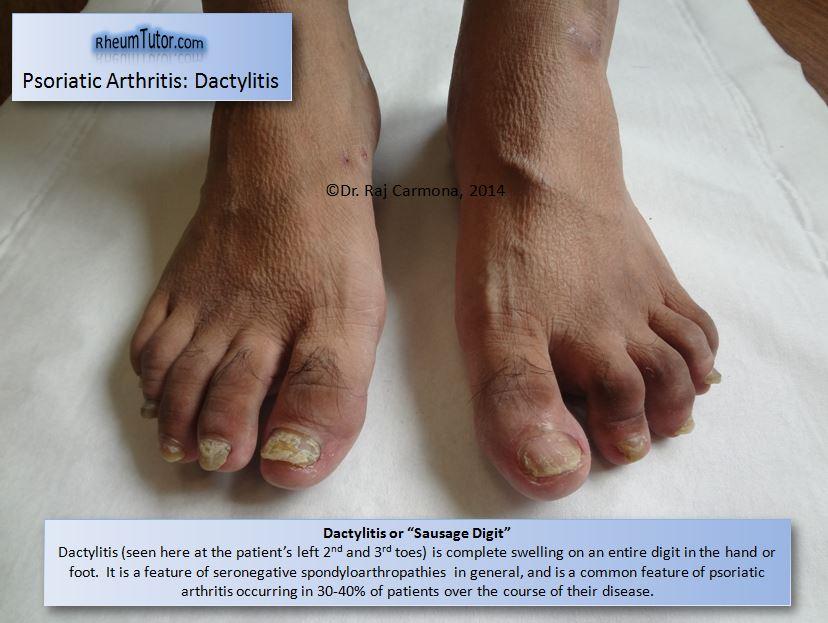 psoriatic arthritis  u00b7 rheumtutor