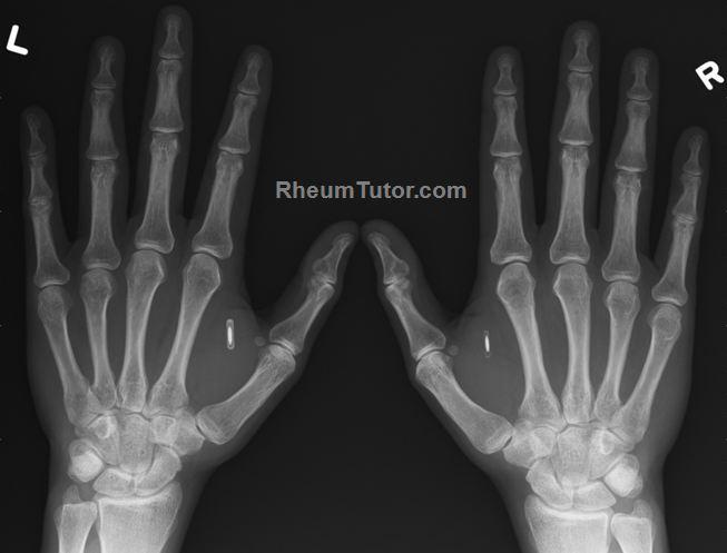 Approach to Hand X-Rays · RheumTutor